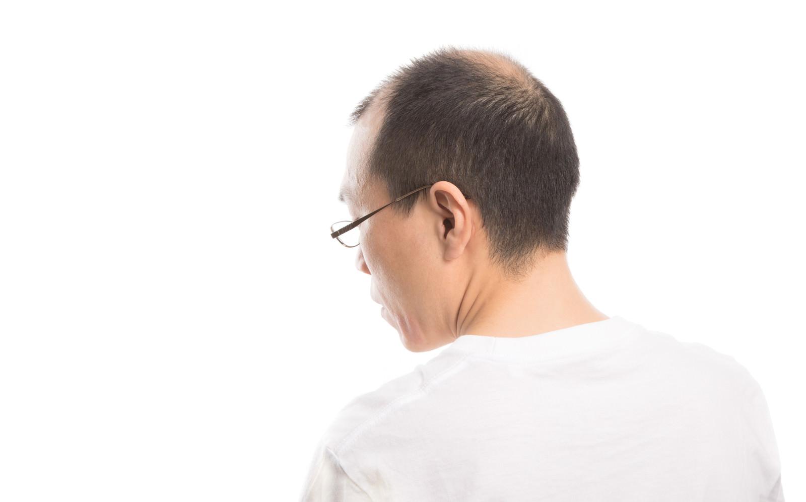 「薄毛男性の背面」の写真[モデル:サンライズ鈴木]