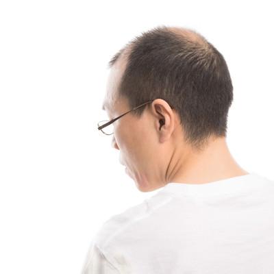 薄毛男性の背面の写真
