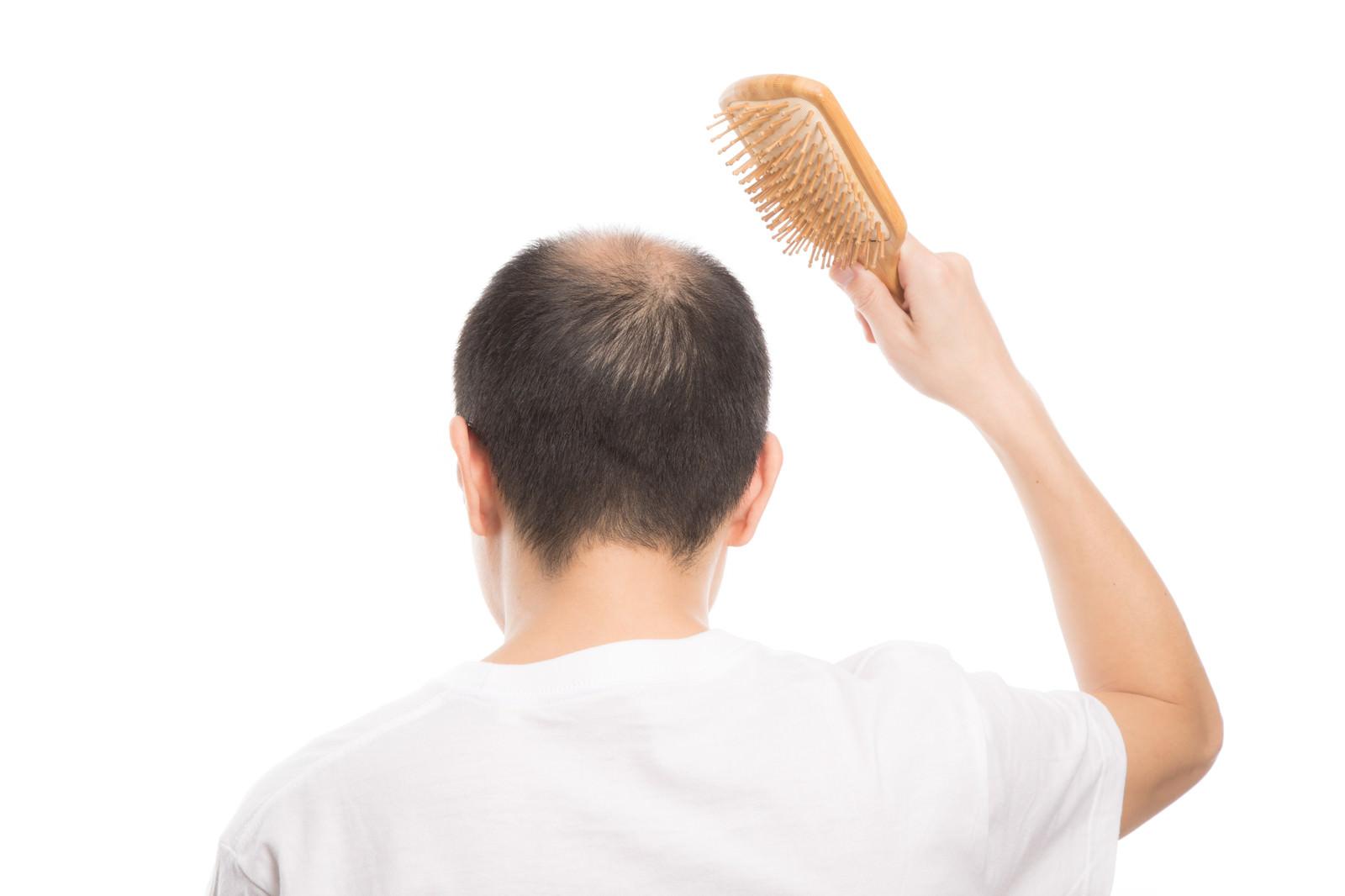 「頭皮に刺激を与える薄毛男性(背後)」の写真[モデル:サンライズ鈴木]
