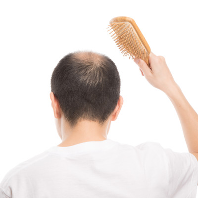 「頭皮に刺激を与える薄毛男性(背後)」の写真素材