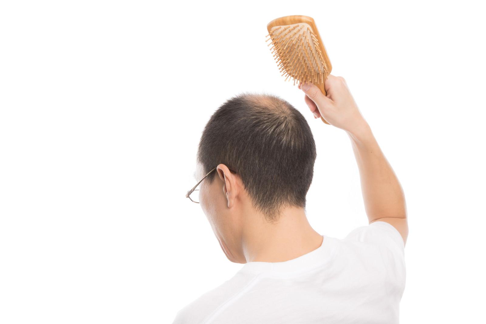 「育毛促進! 頭皮マッサージで血行をよくする薄毛男性」の写真[モデル:サンライズ鈴木]