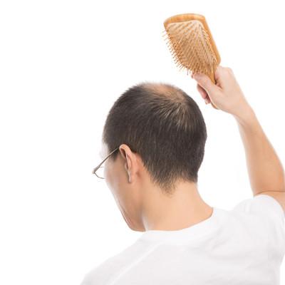 「育毛促進! 頭皮マッサージで血行をよくする薄毛男性」の写真素材