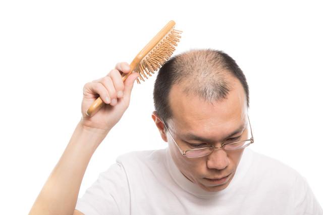 頭頂部を育毛ブラシでトントンする薄毛男性の写真