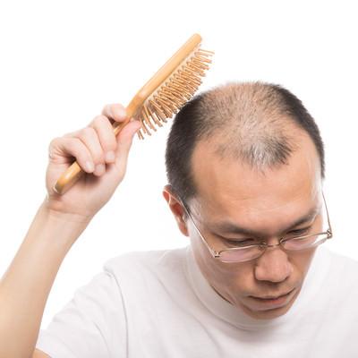「頭頂部を育毛ブラシでトントンする薄毛男性」の写真素材