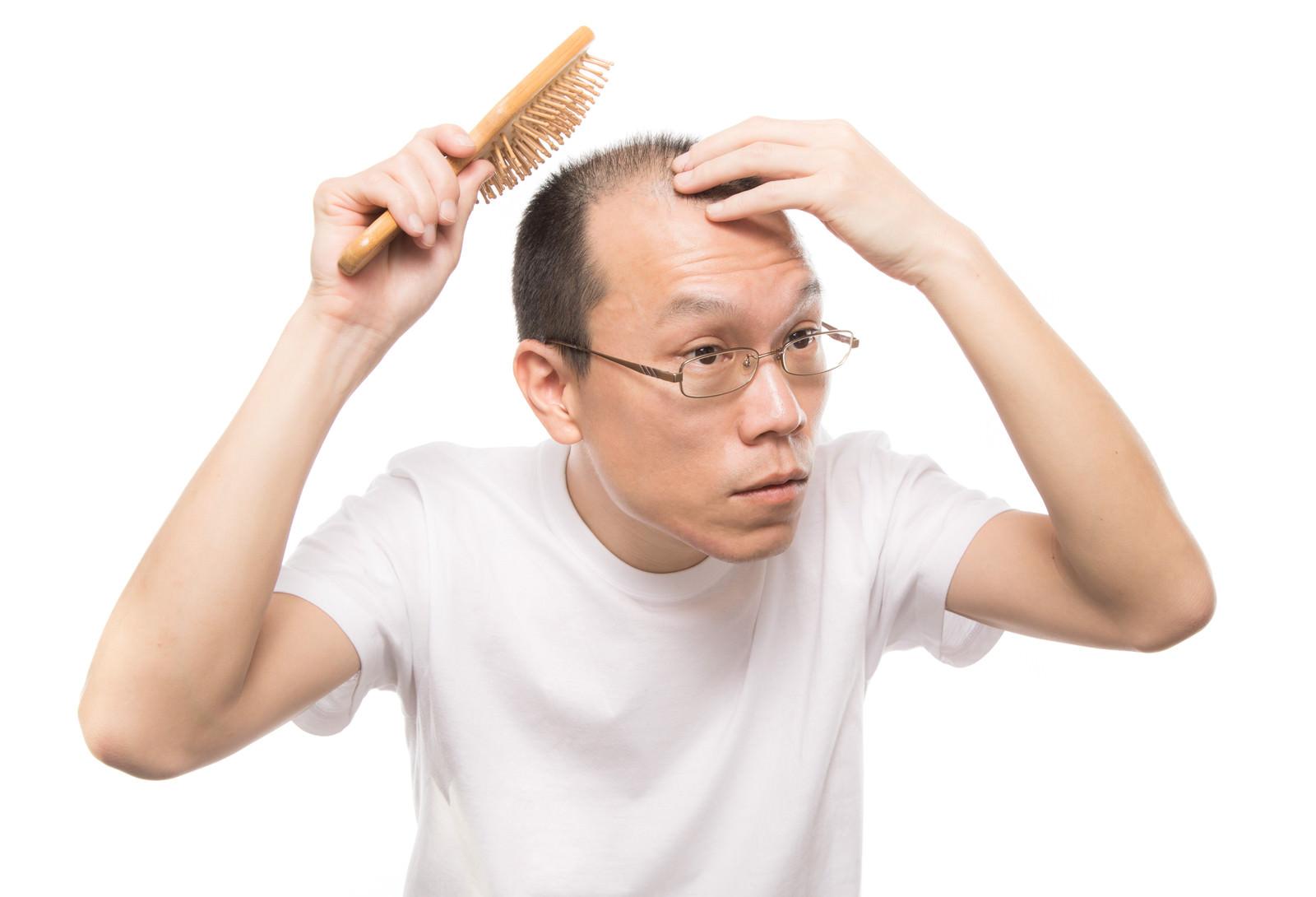 「頭皮ケアブラシでマッサージする薄毛男性」の写真[モデル:サンライズ鈴木]