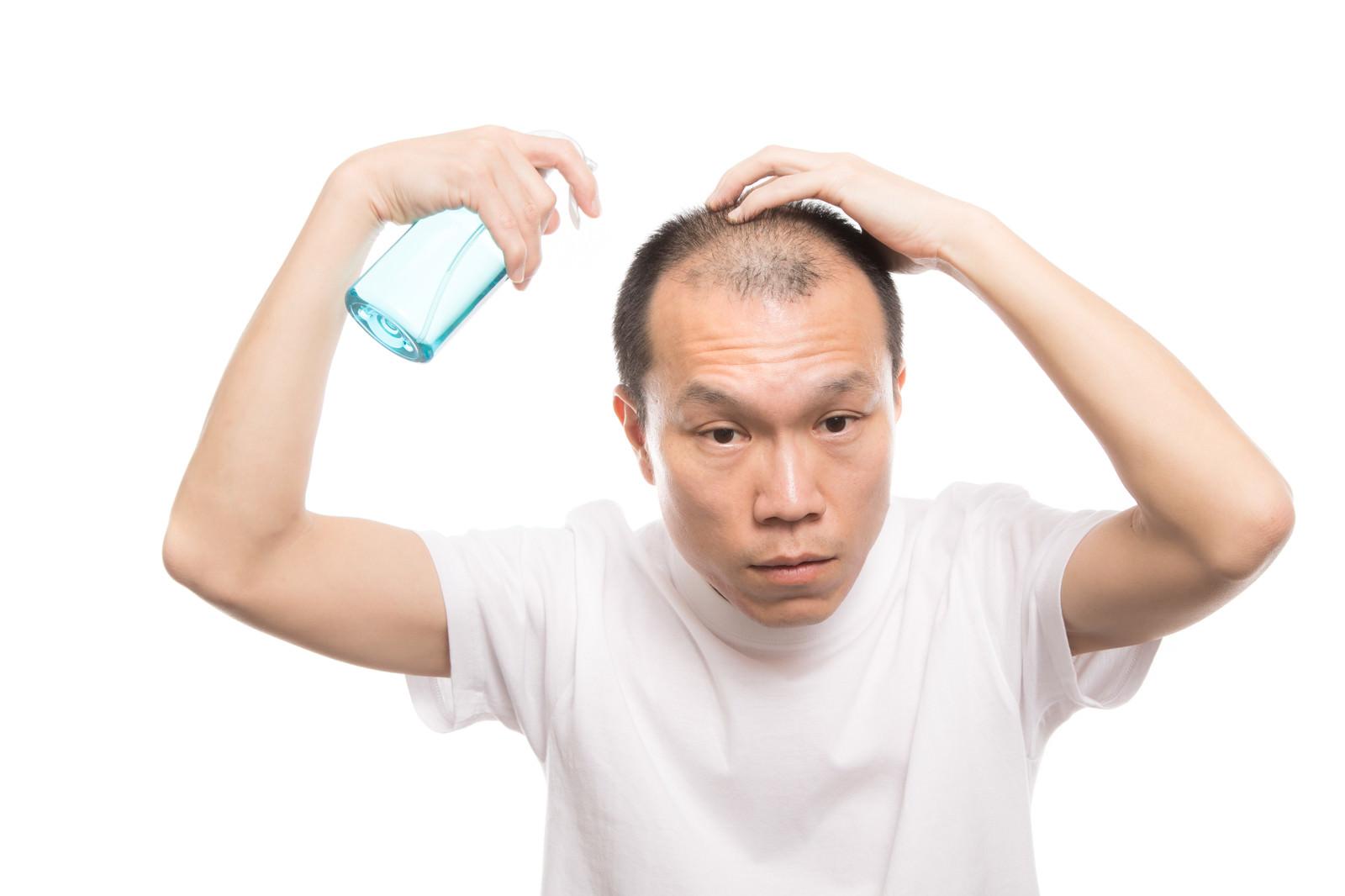 「トニックスプレーを頭皮に噴射する薄毛男性」の写真[モデル:サンライズ鈴木]