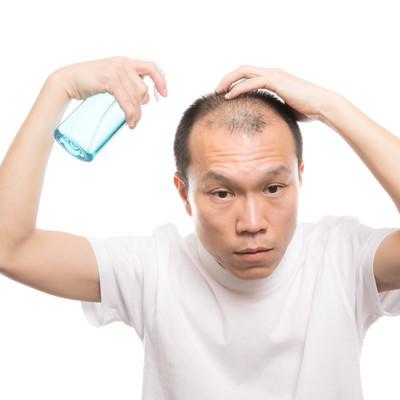 トニックスプレーを頭皮に噴射する薄毛男性の写真