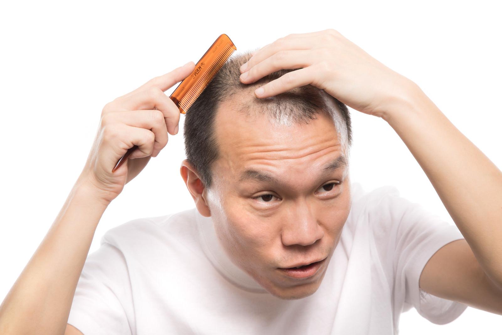 「薄毛でも髪型を気にする男性」の写真[モデル:サンライズ鈴木]