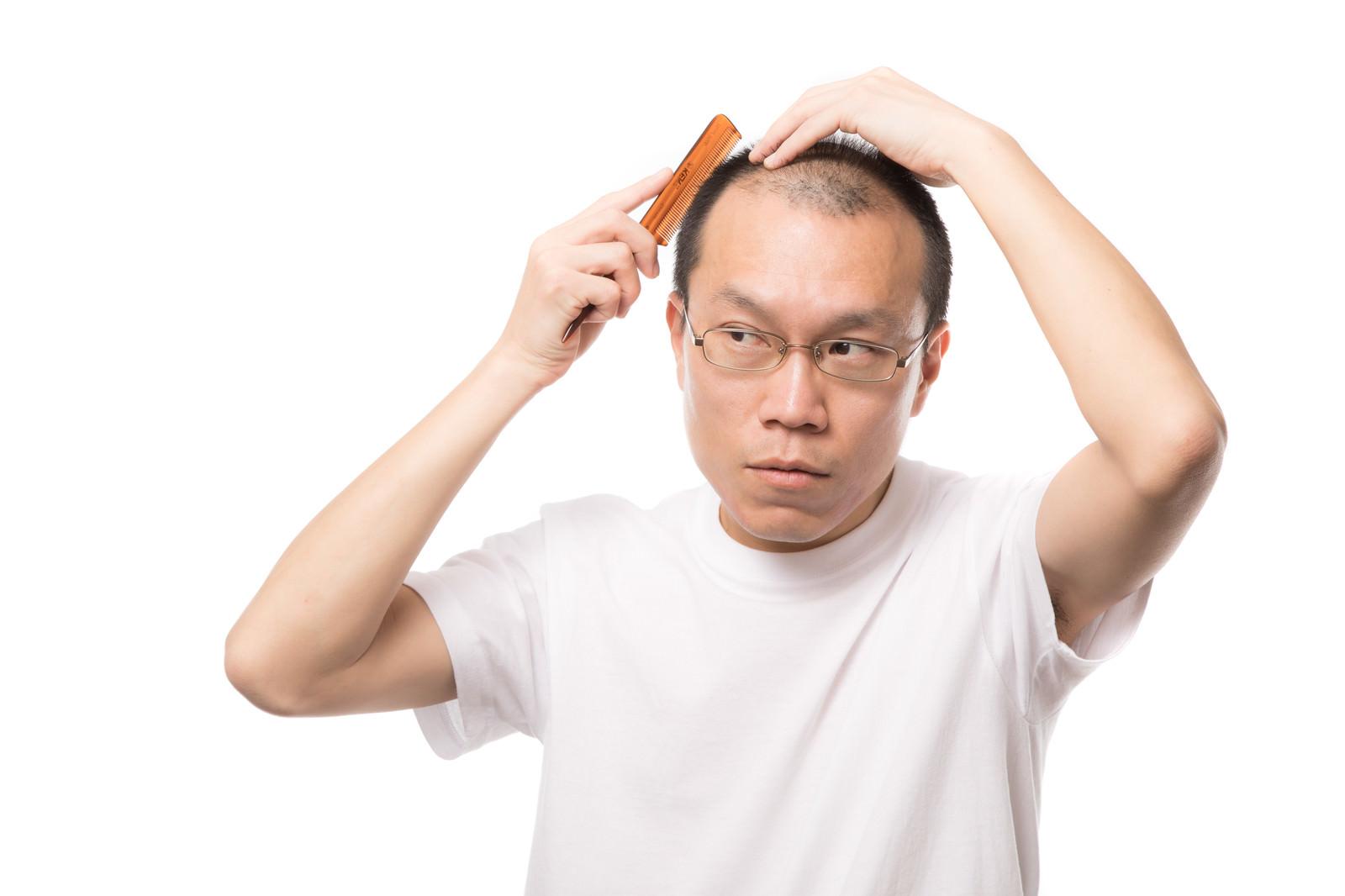 「薄毛ヘアスタイルM字ハゲ男性の場合」の写真[モデル:サンライズ鈴木]