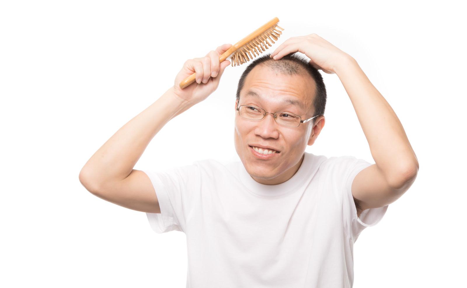 「「髪の毛よ生えておいで!」と育毛ブラシでトントンする薄毛男性」の写真[モデル:サンライズ鈴木]
