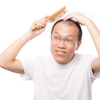 「「髪の毛よ生えておいで!」と育毛ブラシでトントンする薄毛男性」の写真素材