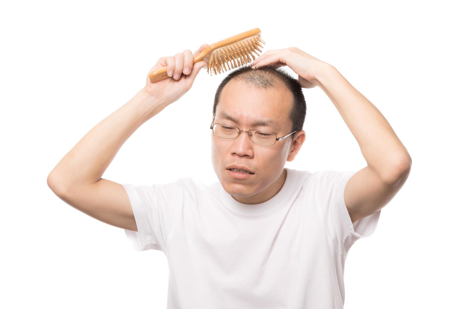 「育毛ブラシで頭部の血行を促進する薄毛男性」の写真[モデル:サンライズ鈴木]