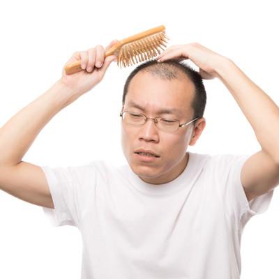 「育毛ブラシで頭部の血行を促進する薄毛男性」の写真素材