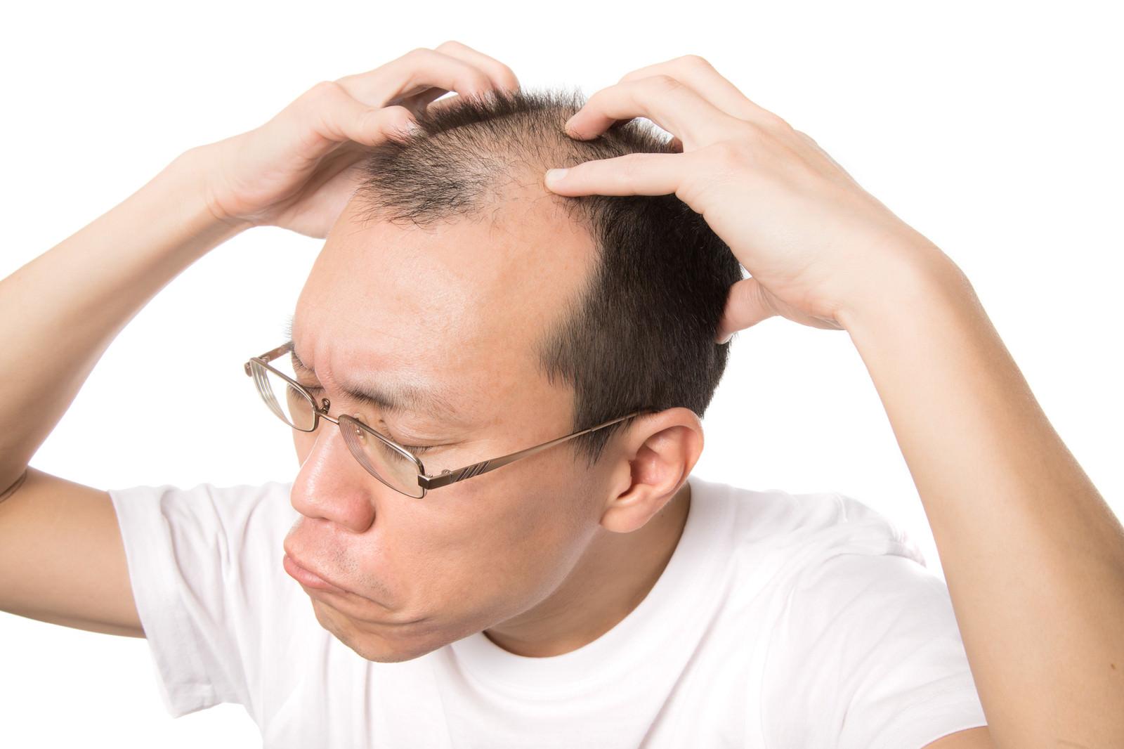 「頭のツボをセルフ指圧する薄毛男性 | 写真の無料素材・フリー素材 - ぱくたそ」の写真