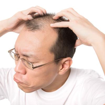 「頭のツボをセルフ指圧する薄毛男性」の写真素材