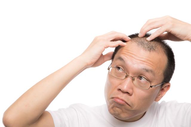 M字の生え際が気になる禿げ男性の写真