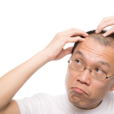「M字の生え際が気になる禿げ男性」の写真素材