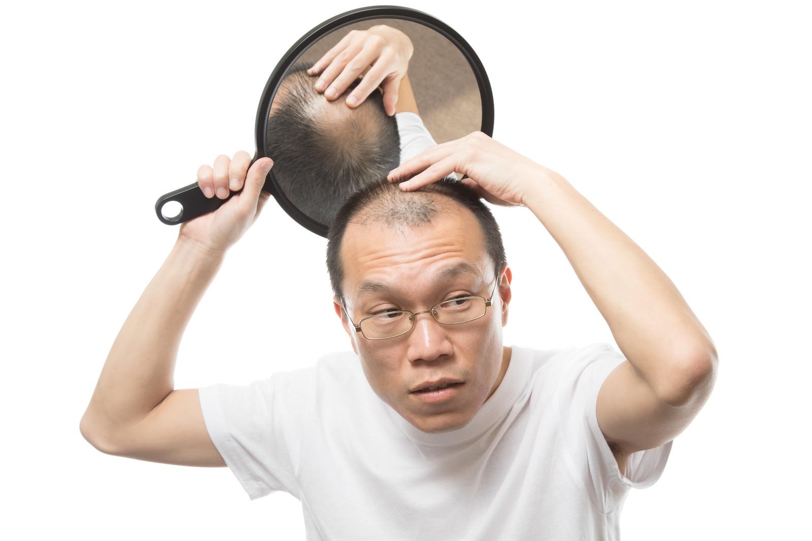 「頭頂部の様子をヘアチェックする薄毛男性」の写真[モデル:サンライズ鈴木]