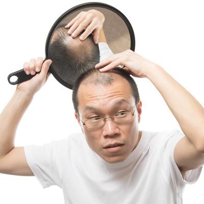 「頭頂部の様子をヘアチェックする薄毛男性」の写真素材