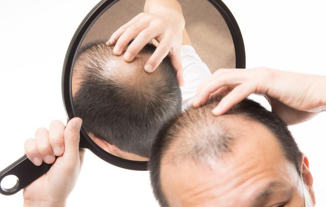 頭頂部のO型禿げを手鏡みで確認する男性の写真