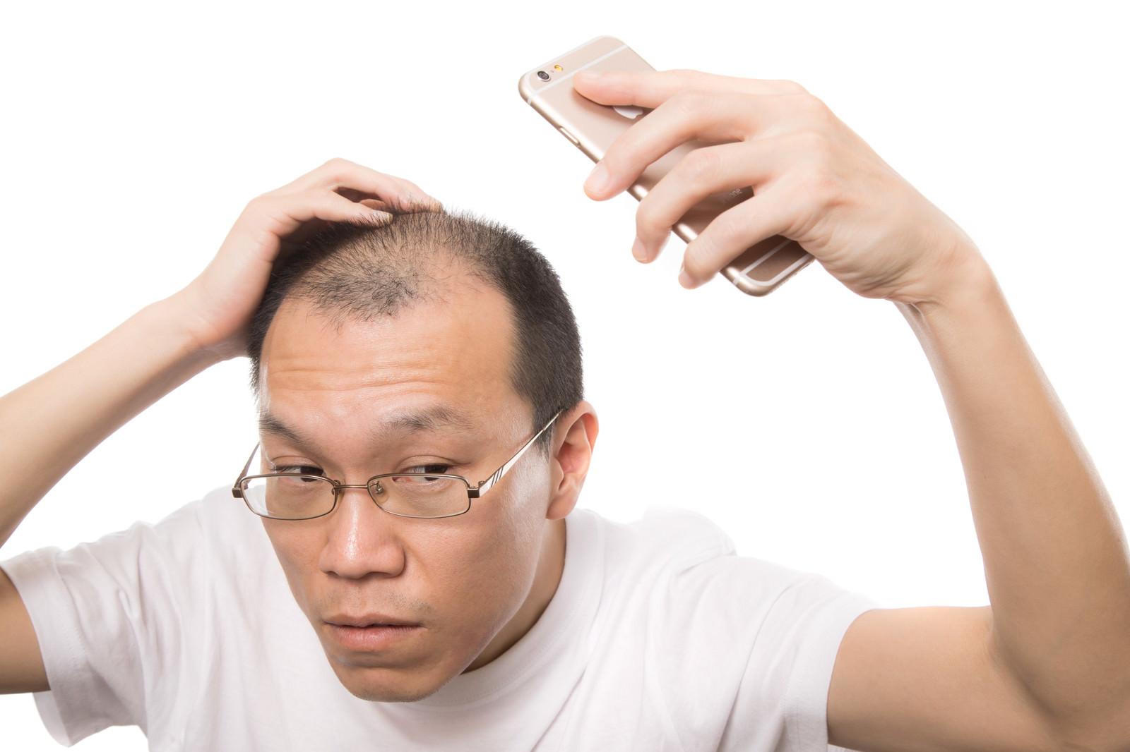 「スマホの自撮りで薄毛をチェックする禿げ男性」の写真[モデル:サンライズ鈴木]