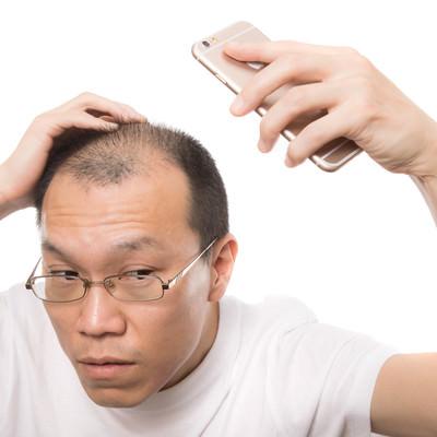 「スマホの自撮りで薄毛をチェックする禿げ男性」の写真素材