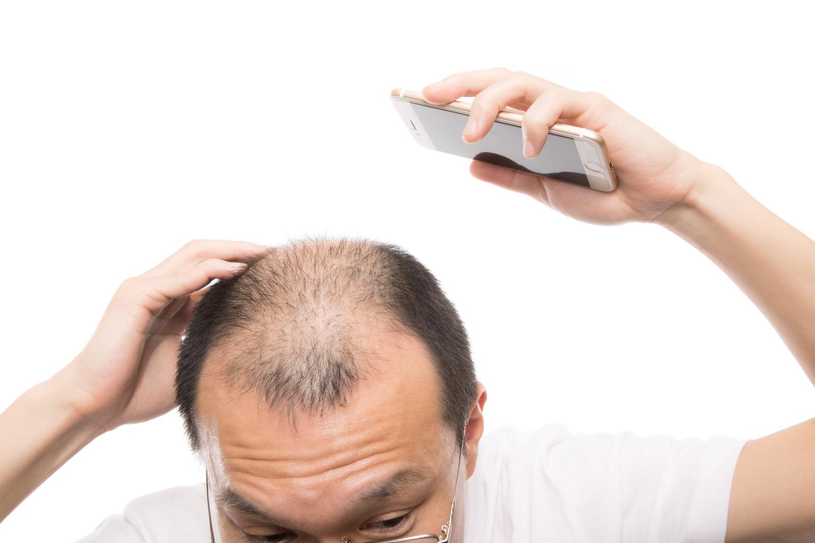 「頭頂部から後頭部にかけてスマホで薄毛具合をチェックする男性」の写真[モデル:サンライズ鈴木]