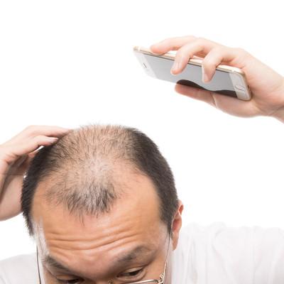 「頭頂部から後頭部にかけてスマホで薄毛具合をチェックする男性」の写真素材