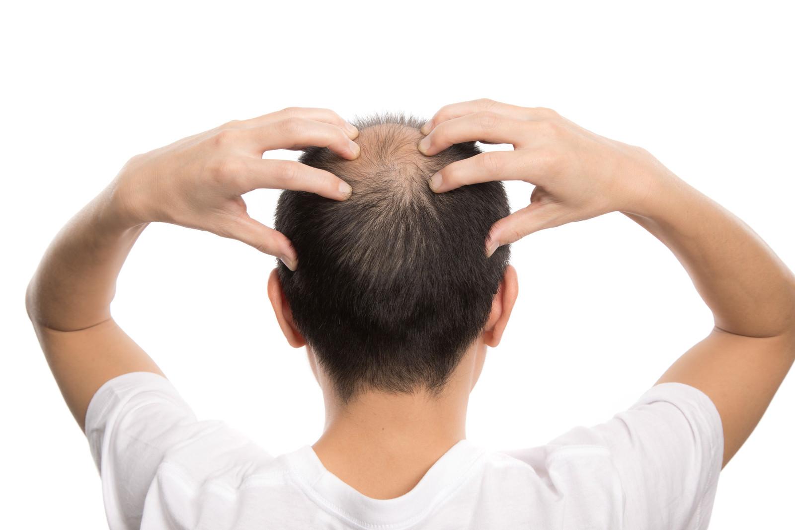 「頭部を指で刺激する薄毛男性(背後)」の写真[モデル:サンライズ鈴木]