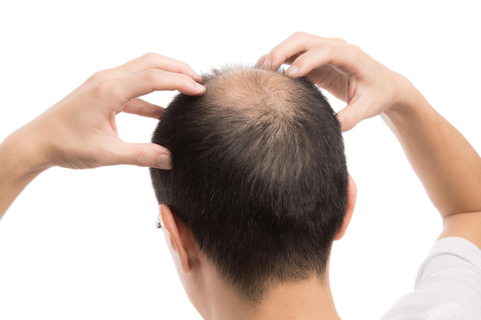 「頭頂部の血行をよくする禿げた男性」の写真[モデル:サンライズ鈴木]