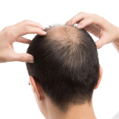「頭頂部の血行をよくする禿げた男性」の写真素材