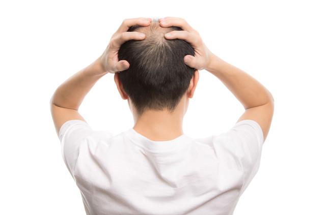 頭を抱える禿げた男性の後ろ姿の写真