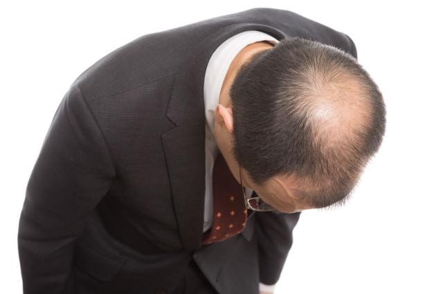 お辞儀をすると頭頂部ハゲが分かりやすい! まさにカッパ状態の写真
