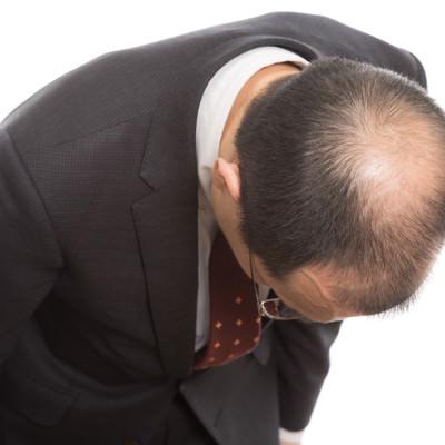 「お辞儀をすると頭頂部ハゲが分かりやすい! まさにカッパ状態」の写真素材