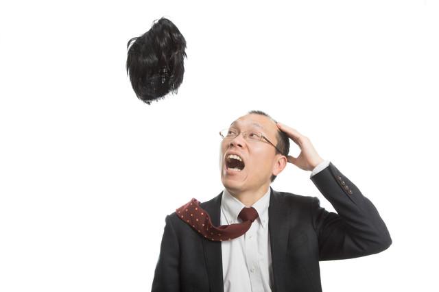 神様から毛髪を取り上げられたハゲリーマンの写真