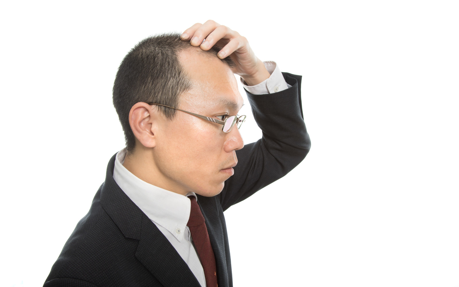 「剃り込みが後退する薄毛会社員」の写真[モデル:サンライズ鈴木]