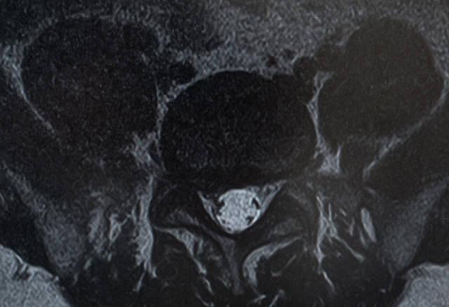 椎間板ヘルニアによって右の神経根が圧迫(MRI輪切り)の写真