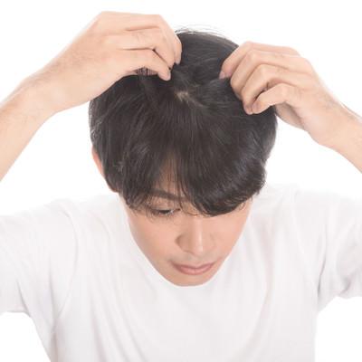 毛根をチェックする若い男性の写真