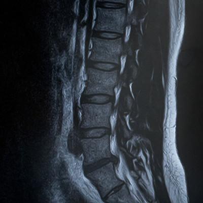 「腰椎5番が椎間板ヘルニア(MRI)」の写真素材