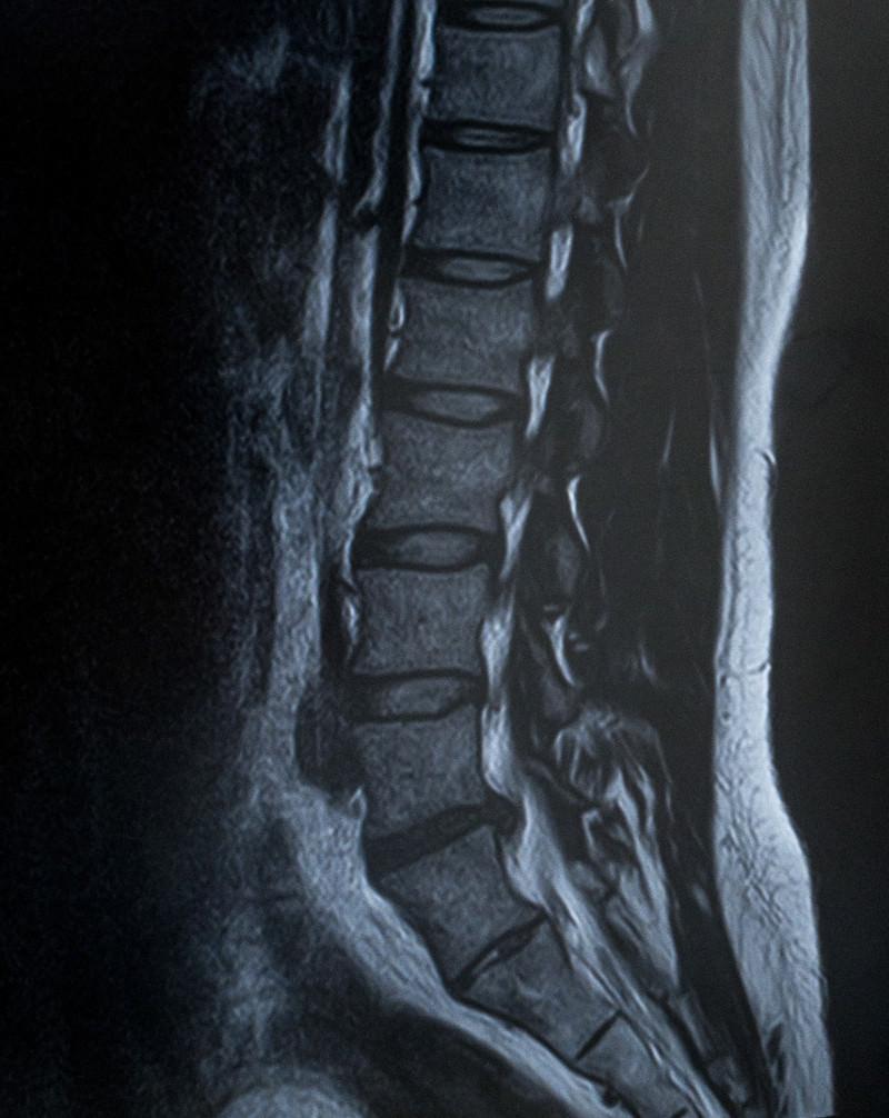 「腰椎5番が椎間板ヘルニア(MRI)」の写真