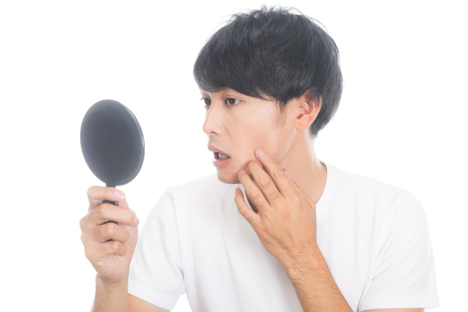 「不摂生で頬に吹き出物ができた男性」の写真[モデル:完伍]