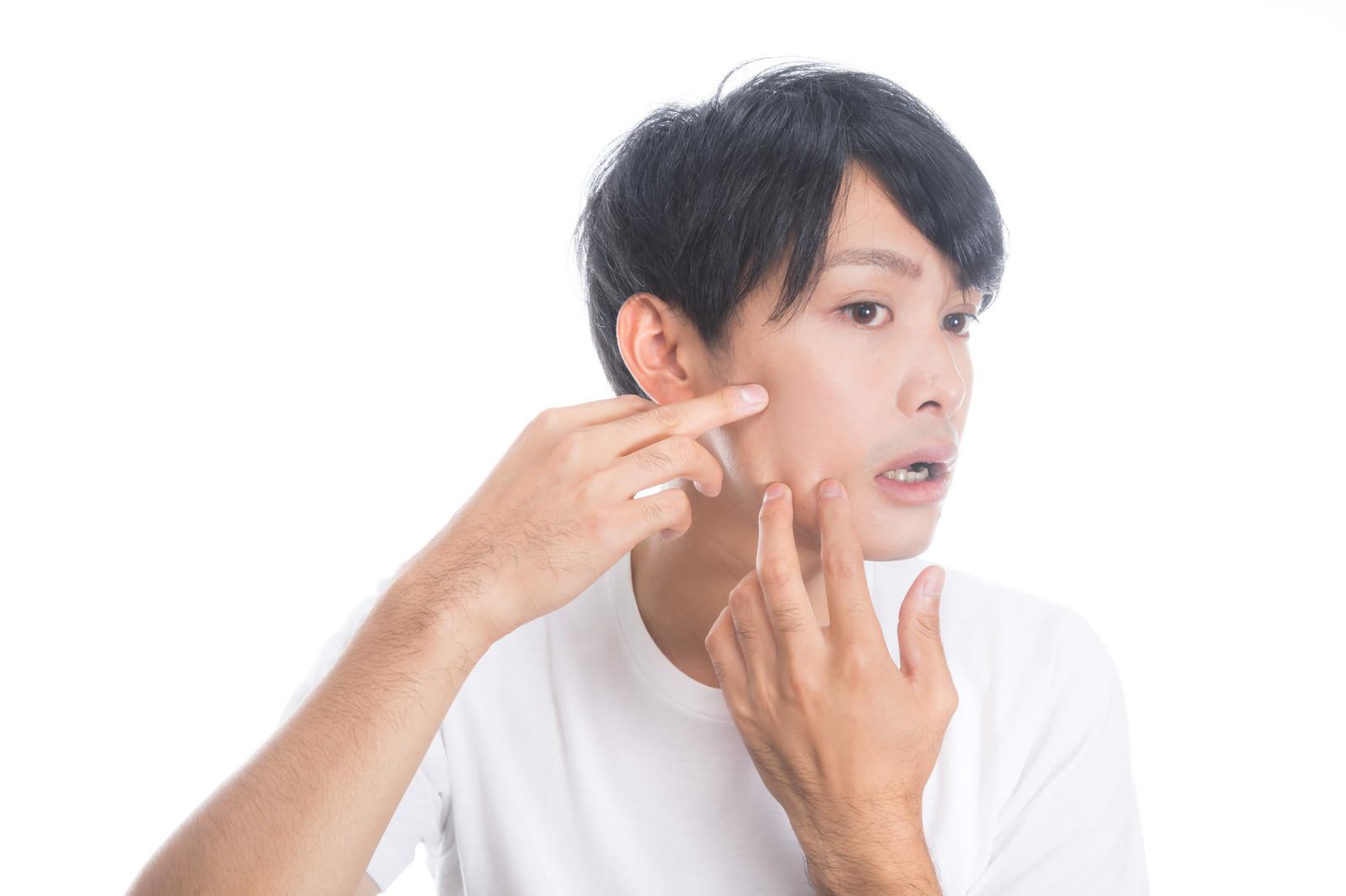 「顔の肌荒れを気にする男性」の写真[モデル:完伍]