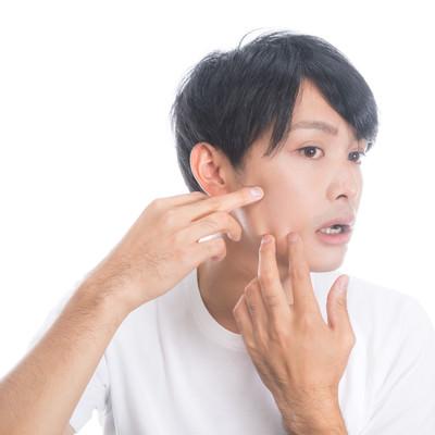 「顔の肌荒れを気にする男性」の写真素材