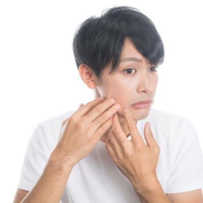 「顔の肌がヒリヒリする男性」の写真素材