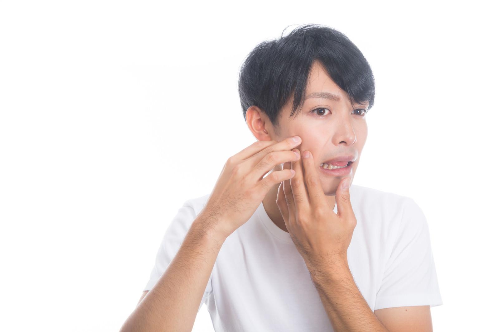 「ニキビを潰しちゃう系男子」の写真[モデル:完伍]