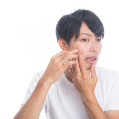 「ニキビを潰しちゃう系男子」の写真素材